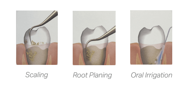 Three graphics showing the process of root planing